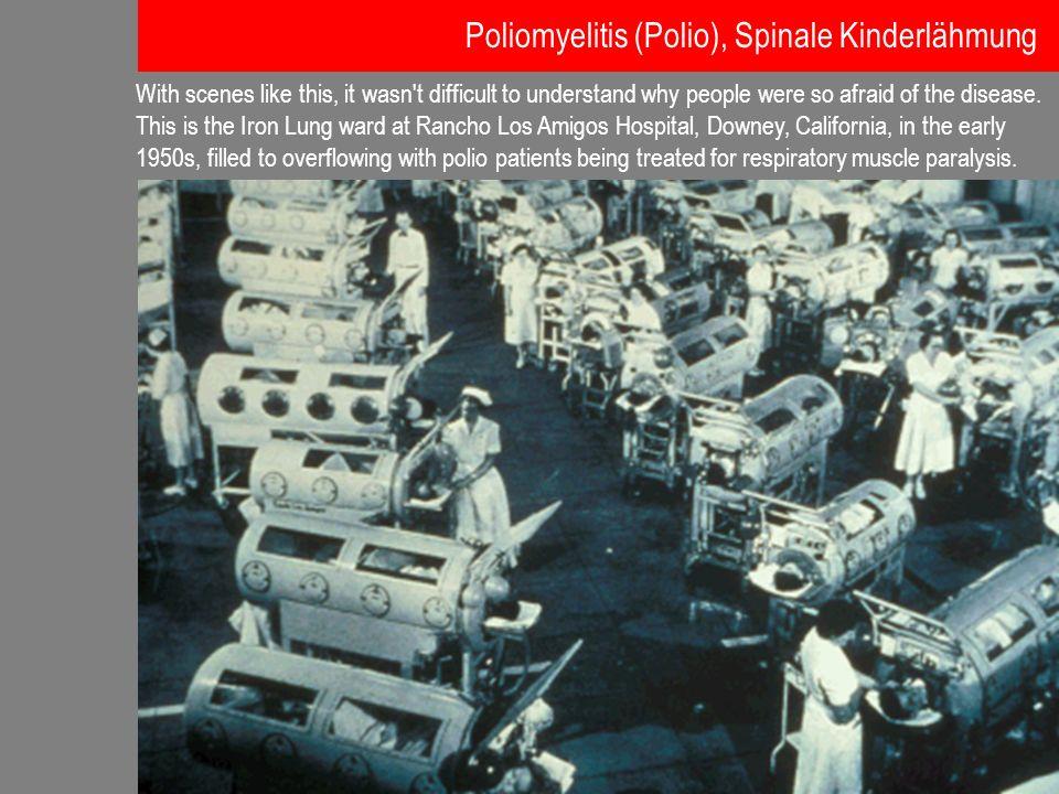 Poliomyelitis (Polio), Spinale Kinderlähmung