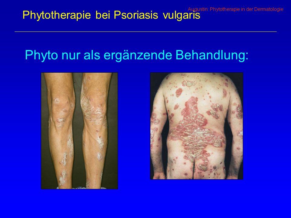 Phytotherapie bei Psoriasis vulgaris