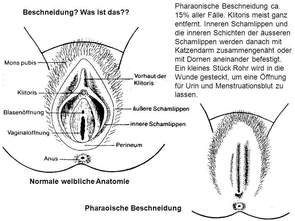 Pharaonische Beschneidung ca. 15% aller Fälle