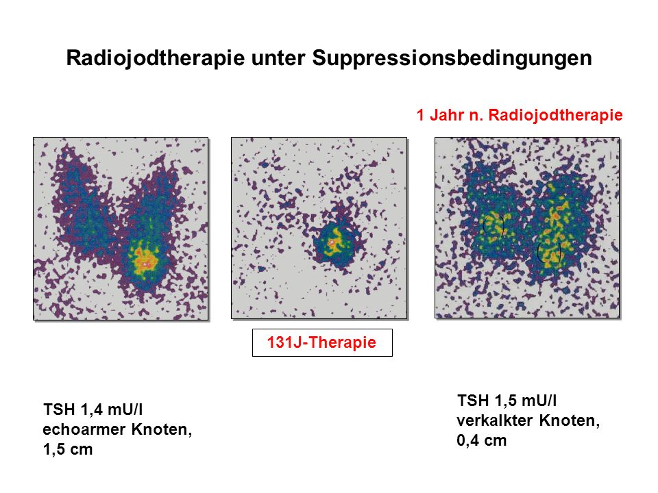Radiojodtherapie unter Suppressionsbedingungen