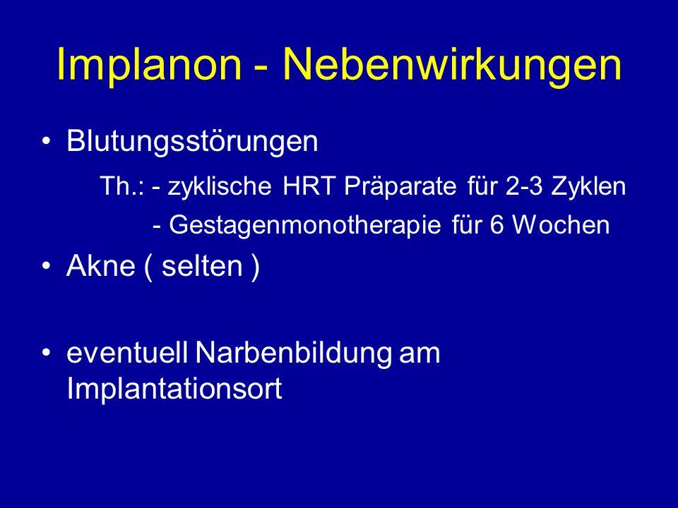 Implanon - Nebenwirkungen