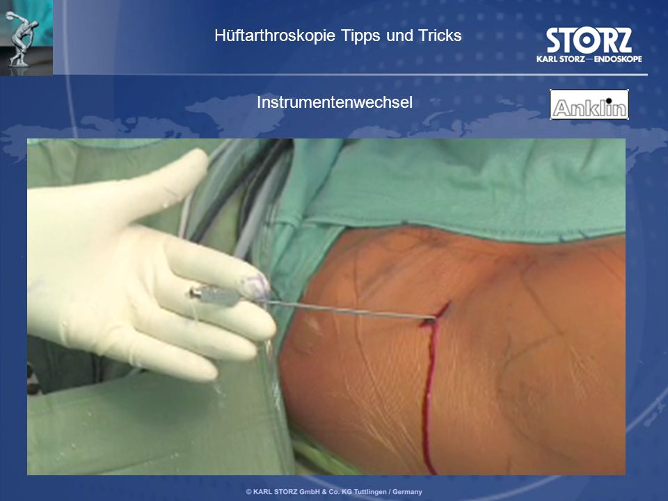 Hüftarthroskopie Tipps und Tricks