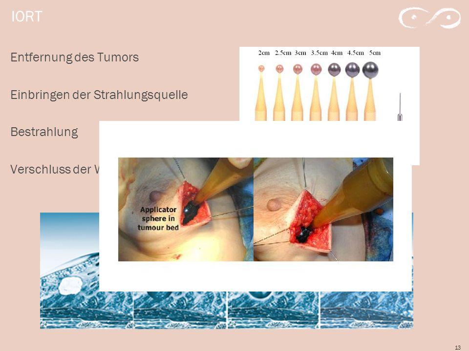IORT Entfernung des Tumors Einbringen der Strahlungsquelle Bestrahlung Verschluss der Wunde