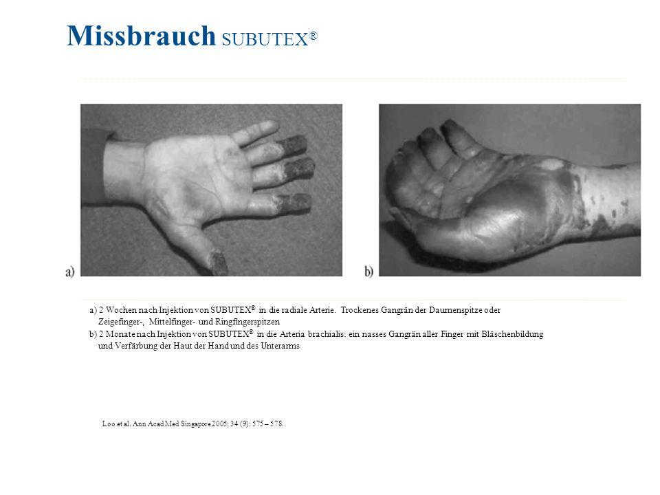 Missbrauch SUBUTEX® a) 2 Wochen nach Injektion von SUBUTEX® in die radiale Arterie. Trockenes Gangrän der Daumenspitze oder.