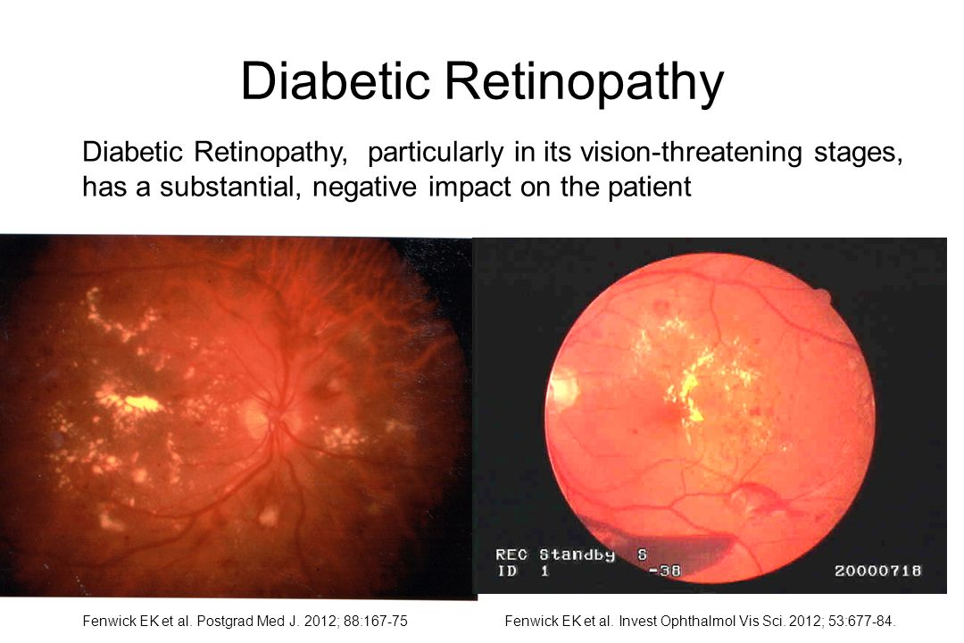 Diabetic Retinopathy Diabetic Retinopathy, particularly in its vision-threatening stages, has a substantial, negative impact on the patient.