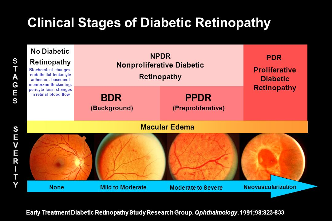 Clinical Stages of Diabetic Retinopathy