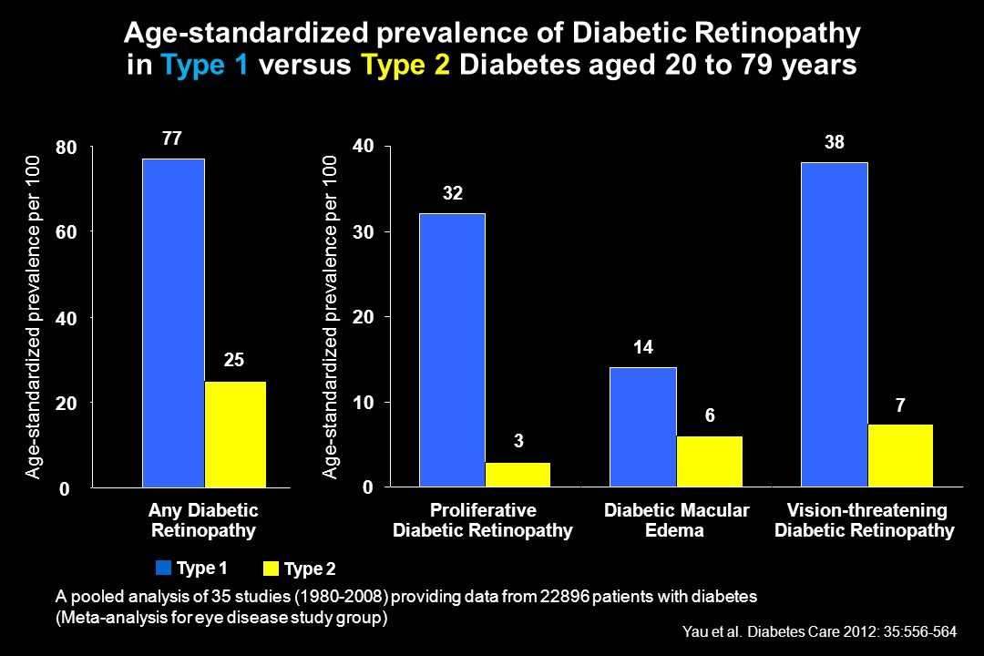 Age-standardized prevalence of Diabetic Retinopathy in Type 1 versus Type 2 Diabetes aged 20 to 79 years