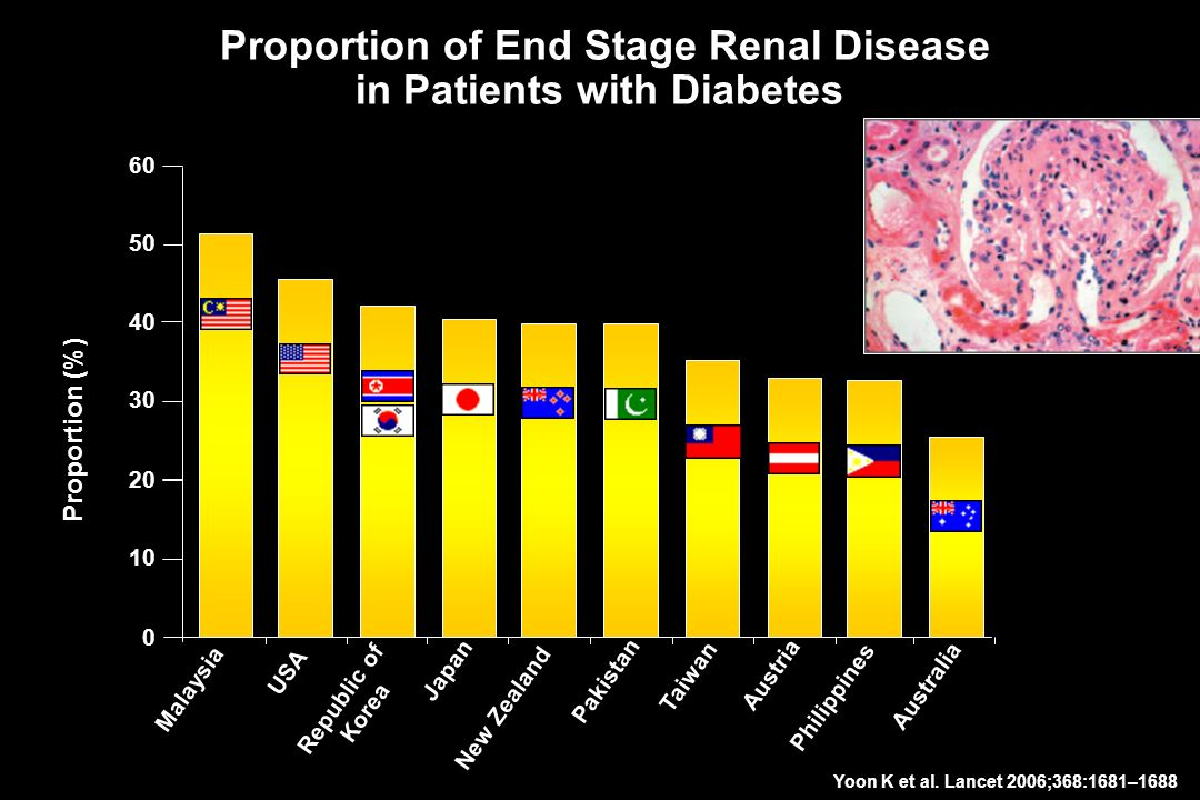 Proportion of End Stage Renal Disease in Patients with Diabetes