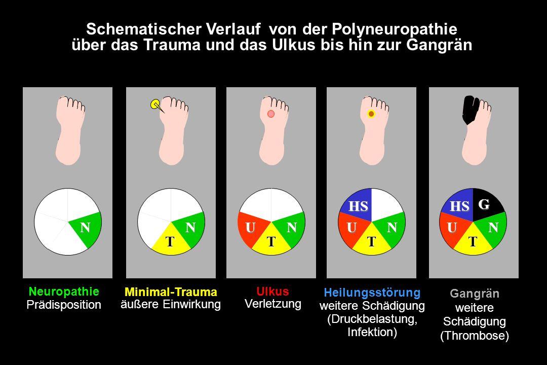 Schematischer Verlauf von der Polyneuropathie über das Trauma und das Ulkus bis hin zur Gangrän