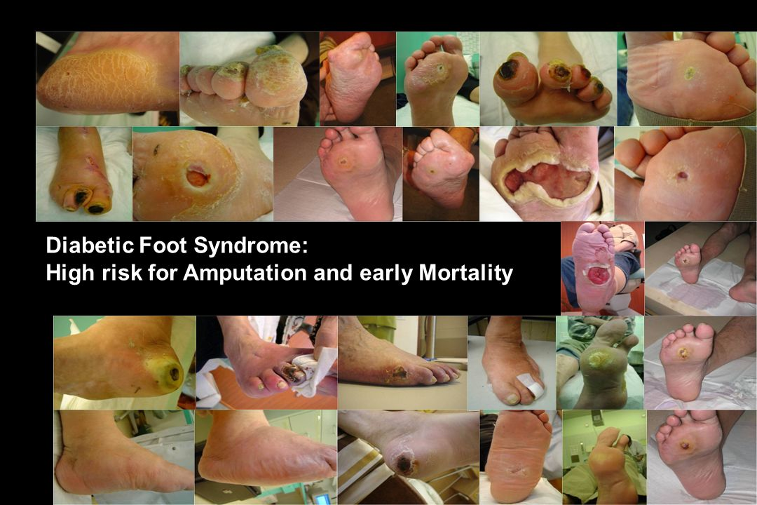Diabetic Foot Syndrome: High risk for Amputation and early Mortality