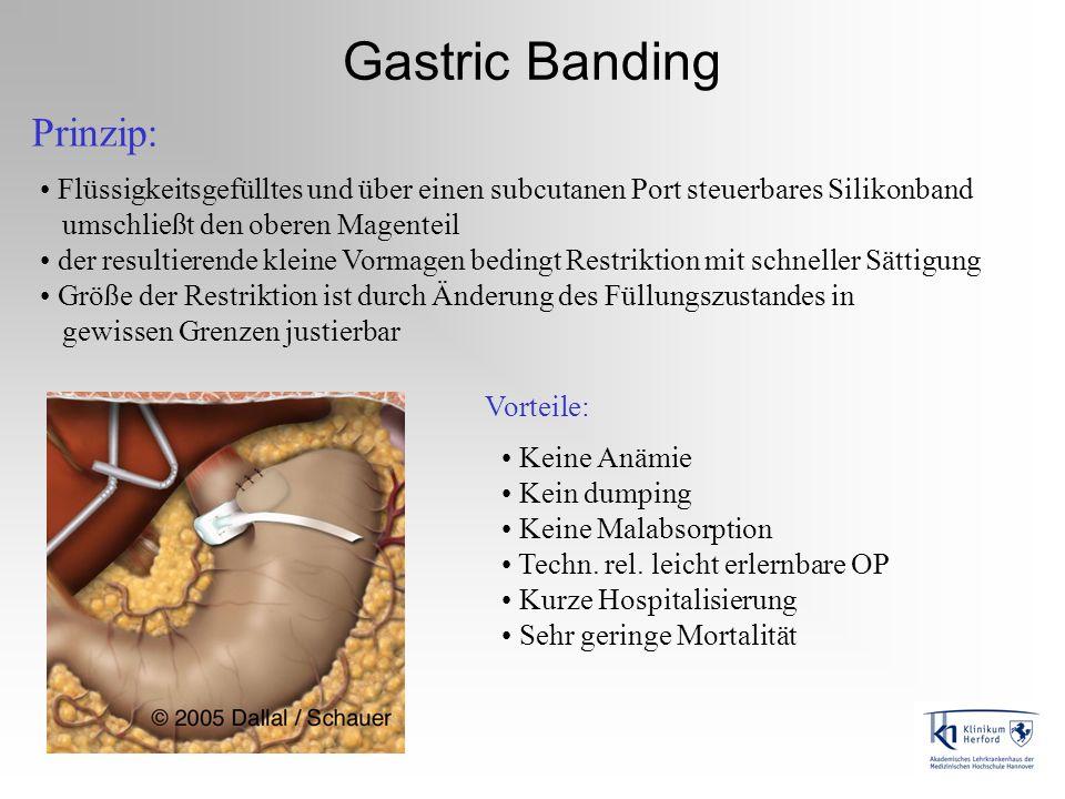 Gastric Banding Prinzip: