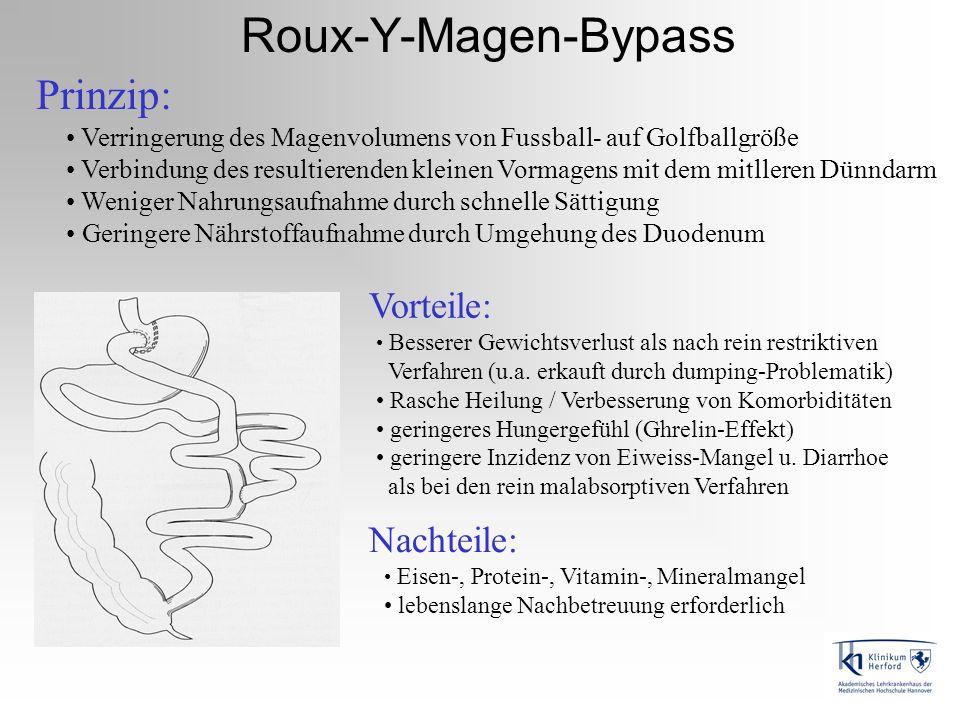 Roux-Y-Magen-Bypass Prinzip: Vorteile: Nachteile:
