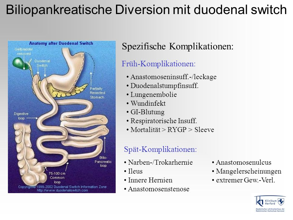 Biliopankreatische Diversion mit duodenal switch