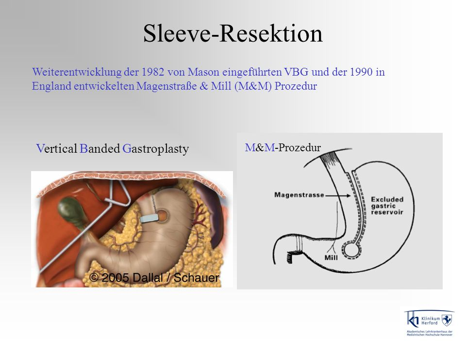 Sleeve-Resektion Vertical Banded Gastroplasty