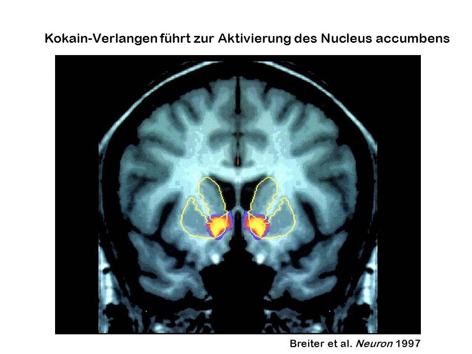 Kokain-Verlangen führt zur Aktivierung des Nucleus accumbens