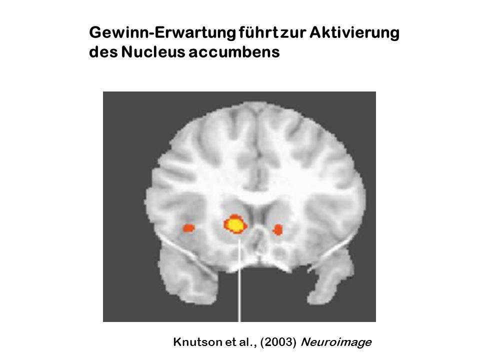Gewinn-Erwartung führt zur Aktivierung des Nucleus accumbens