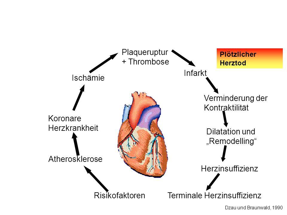 Terminale Herzinsuffizienz