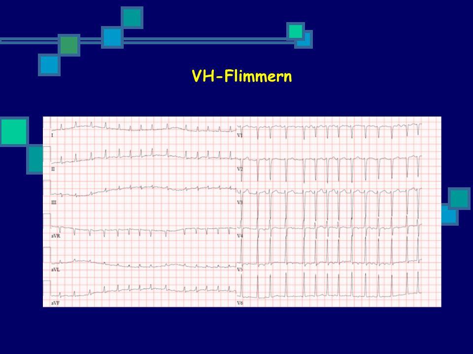VH-Flimmern