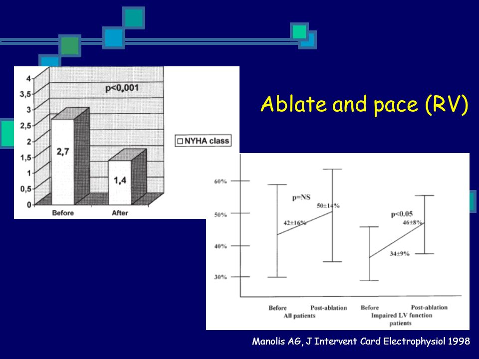 Ablate and pace (RV) Manolis AG, J Intervent Card Electrophysiol 1998