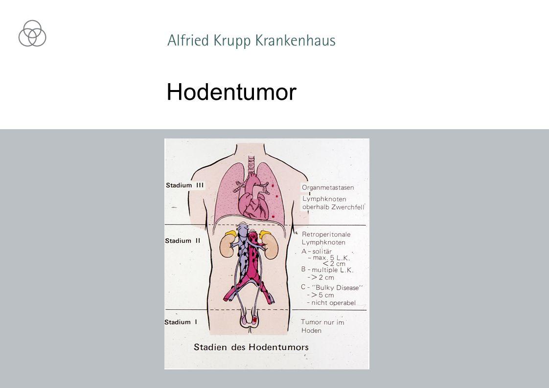 Hodentumor
