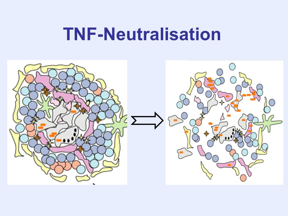 TNF-Neutralisation