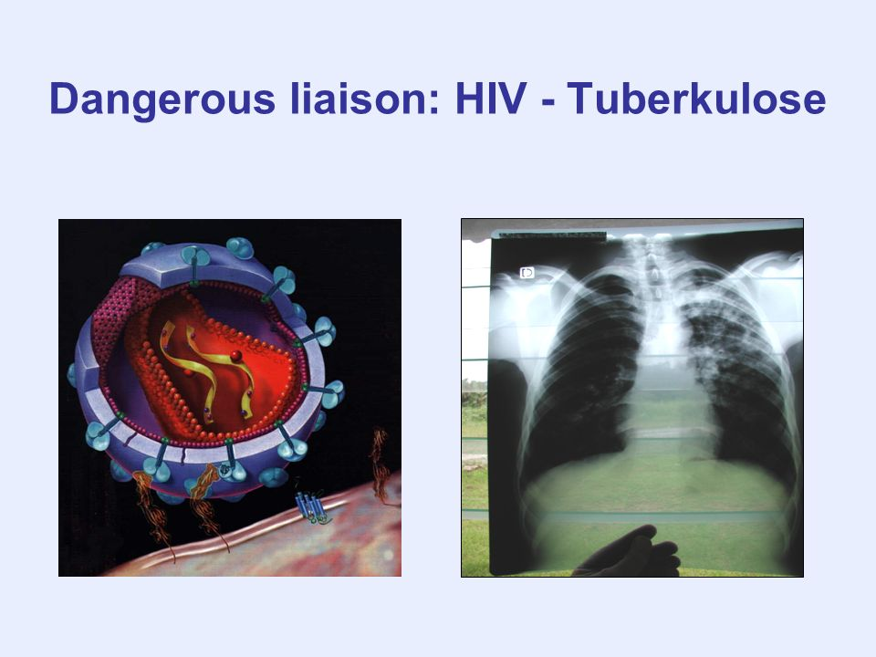 Dangerous liaison: HIV - Tuberkulose