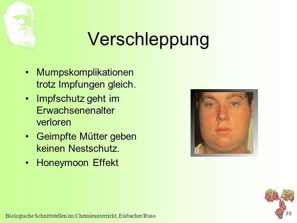 Verschleppung Mumpskomplikationen trotz Impfungen gleich.