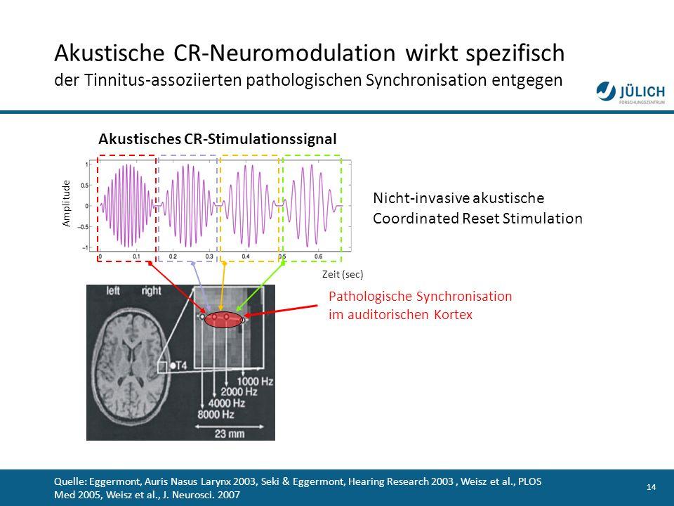Akustische CR-Neuromodulation wirkt spezifisch der Tinnitus-assoziierten pathologischen Synchronisation entgegen