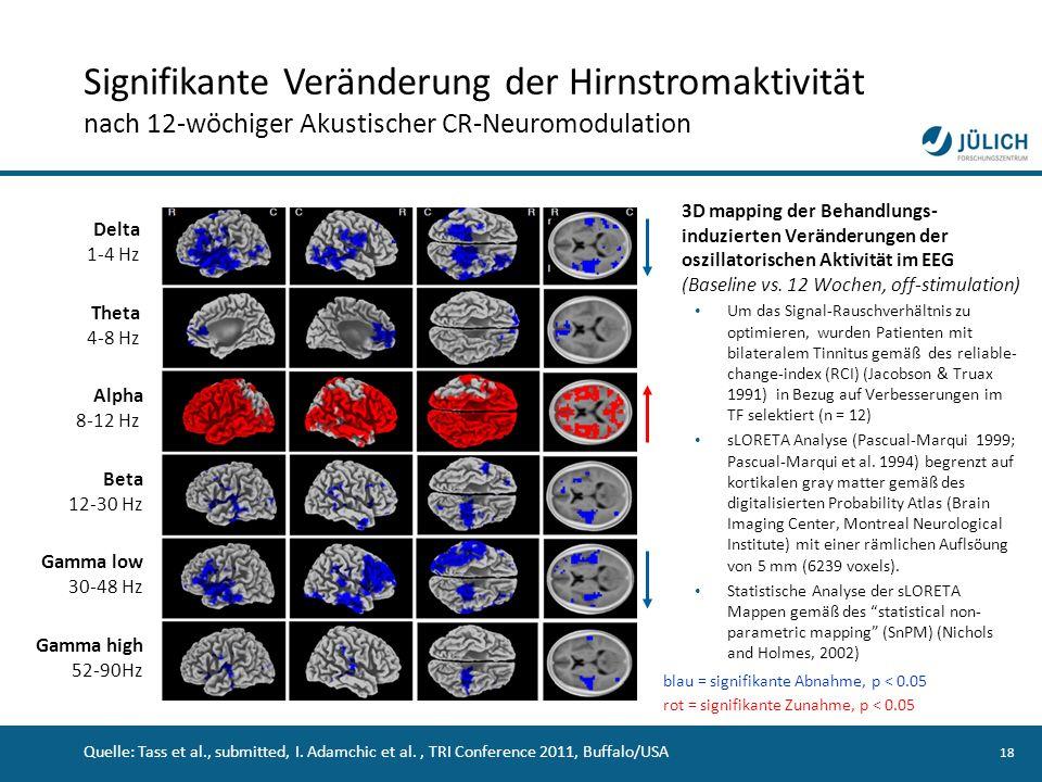 Signifikante Veränderung der Hirnstromaktivität nach 12-wöchiger Akustischer CR-Neuromodulation