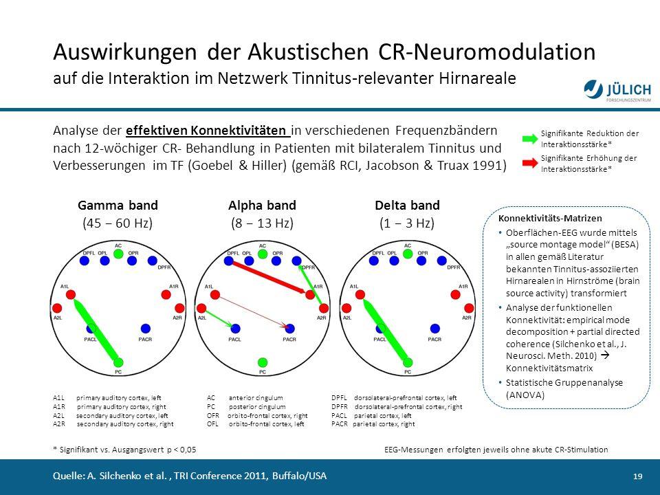 Auswirkungen der Akustischen CR-Neuromodulation auf die Interaktion im Netzwerk Tinnitus-relevanter Hirnareale