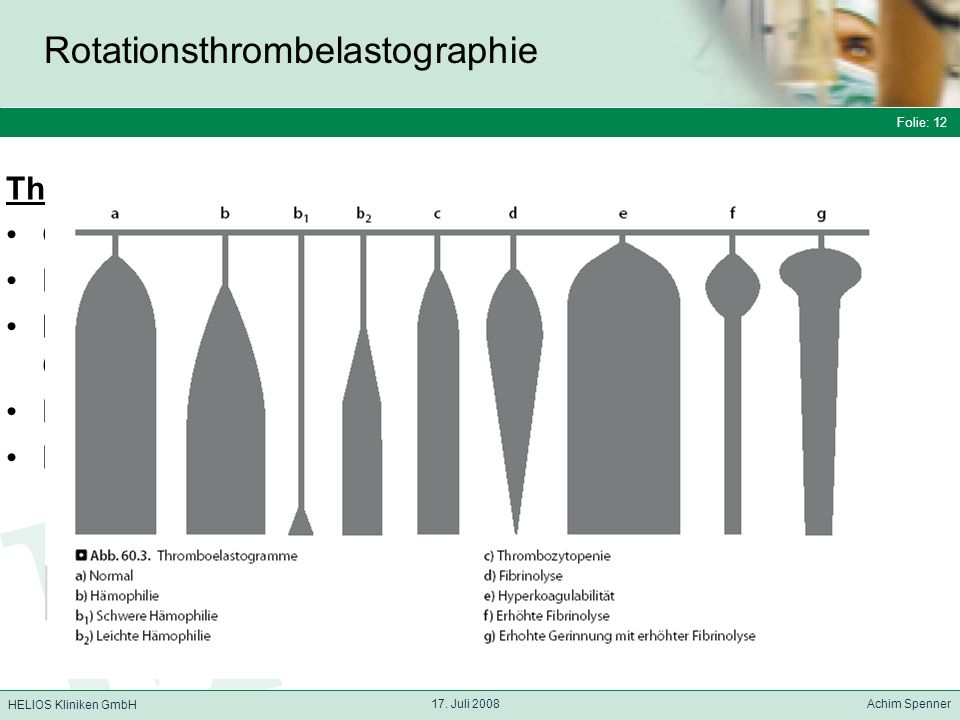 Rotationsthrombelastographie