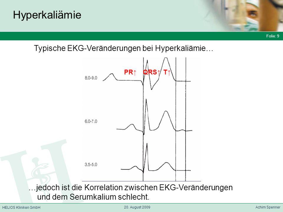 Hyperkaliämie Typische EKG-Veränderungen bei Hyperkaliämie…