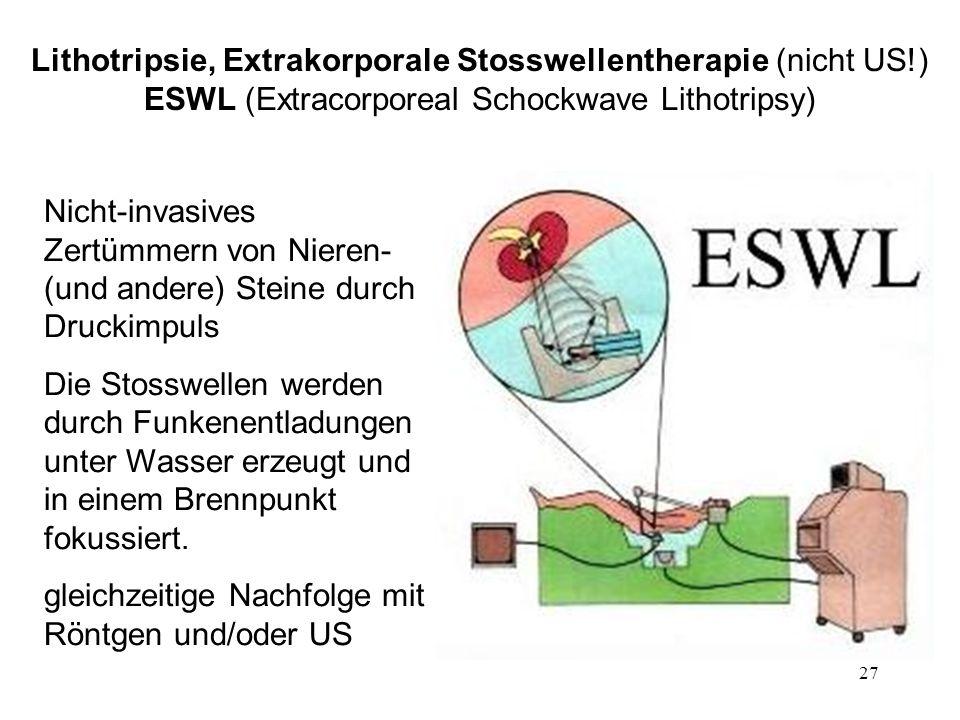 Lithotripsie, Extrakorporale Stosswellentherapie (nicht US