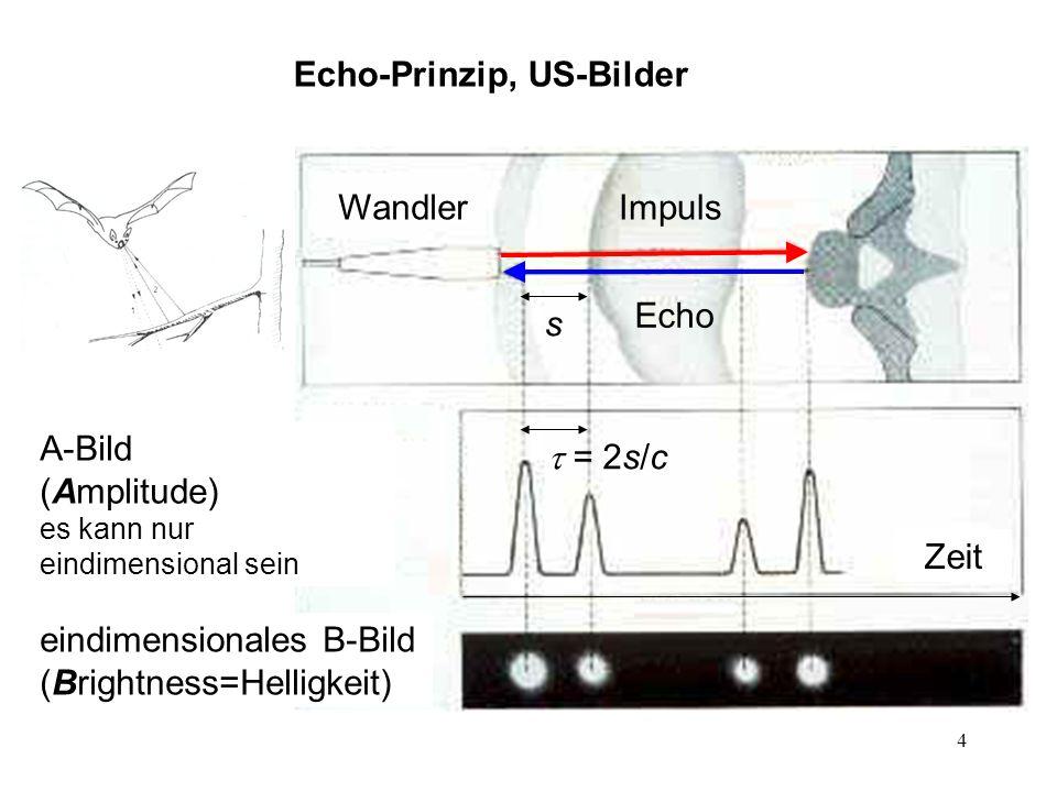 Echo-Prinzip, US-Bilder