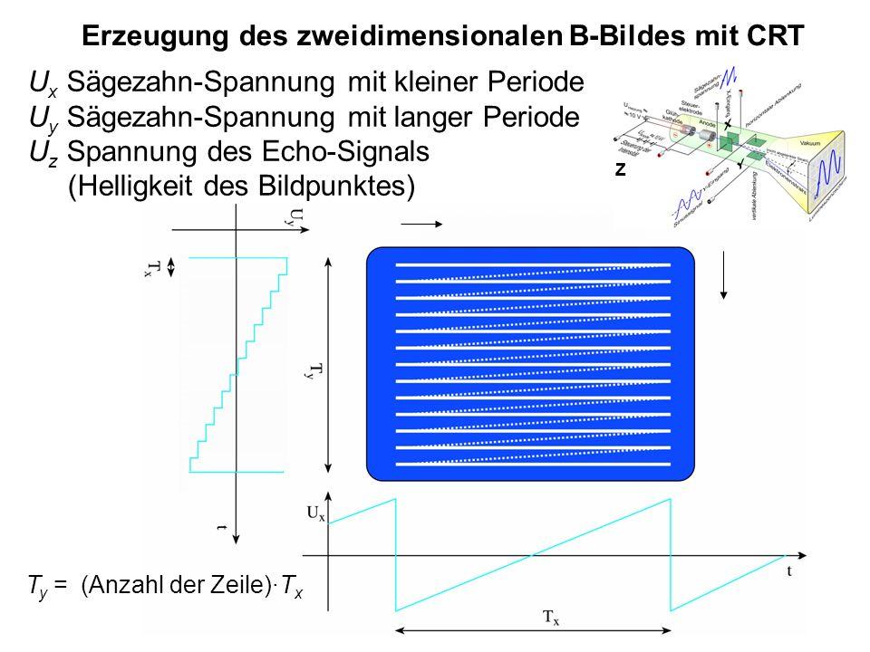 Erzeugung des zweidimensionalen B-Bildes mit CRT