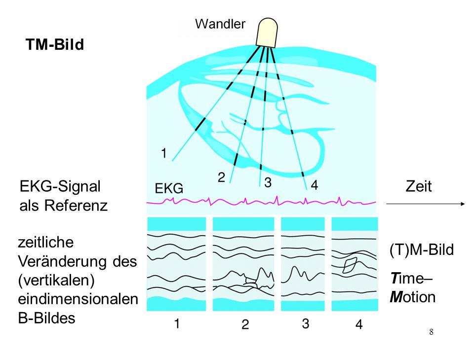 TM-Bild EKG-Signal als Referenz. Zeit. zeitliche Veränderung des (vertikalen) eindimensionalen B-Bildes.