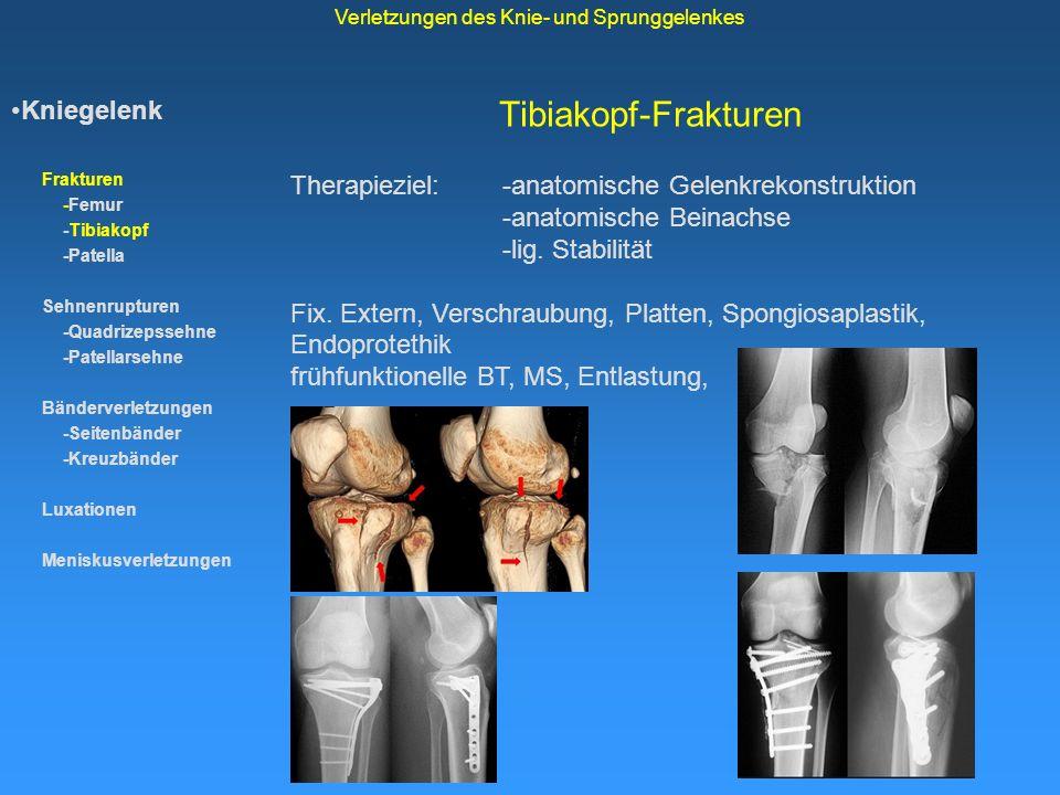 Verletzungen des Knie- und Sprunggelenkes