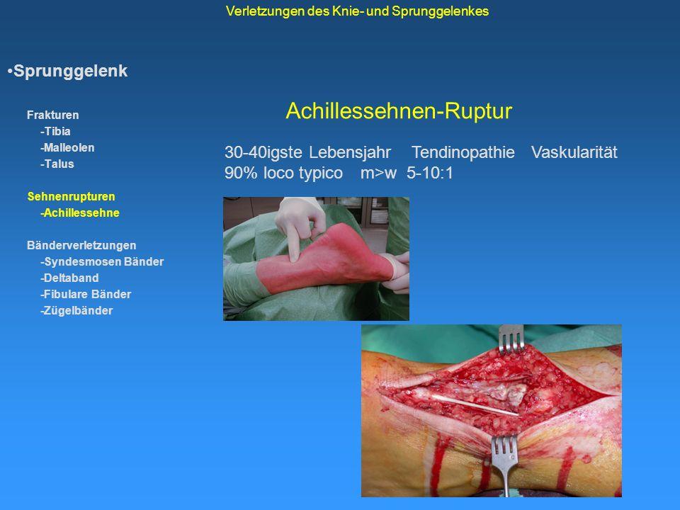 Achillessehnen-Ruptur