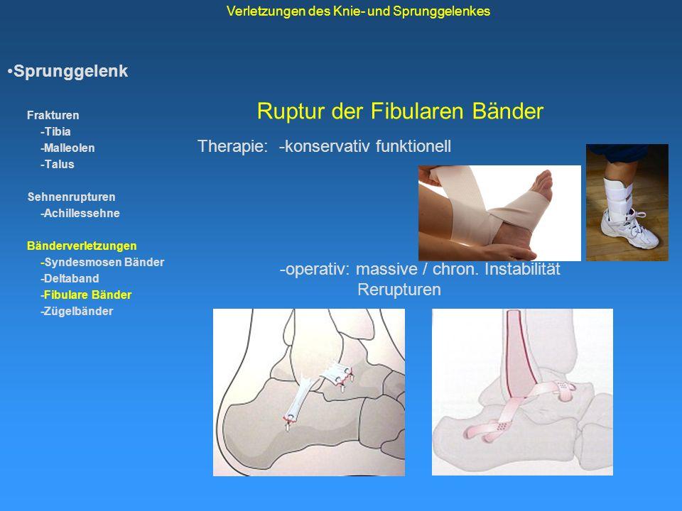 Ruptur der Fibularen Bänder