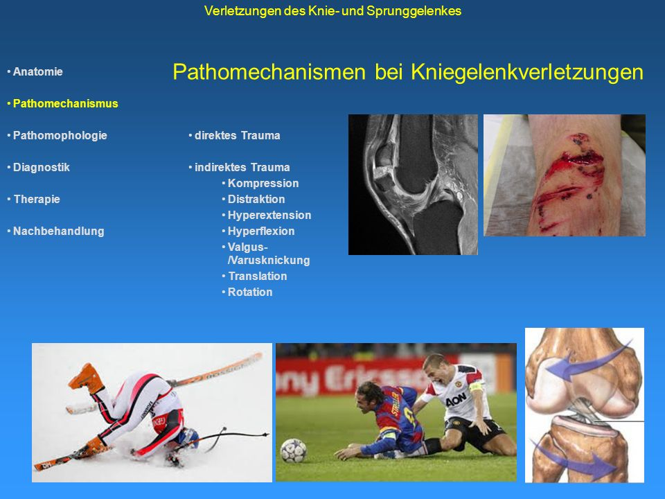 kollateralband knie therapie