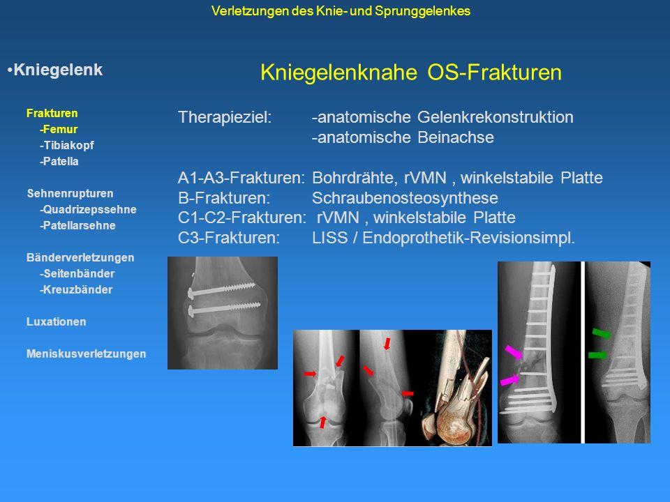 Kniegelenknahe OS-Frakturen