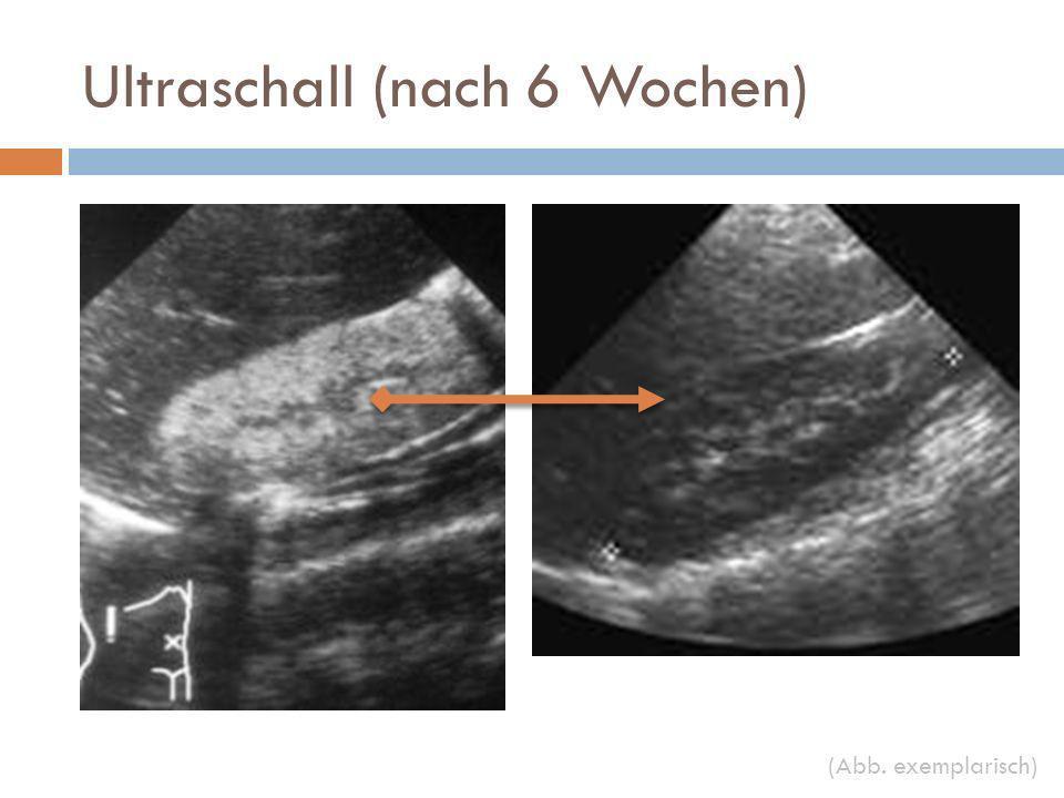 Ultraschall (nach 6 Wochen)