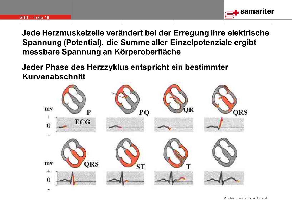 Jede Herzmuskelzelle verändert bei der Erregung ihre elektrische Spannung (Potential), die Summe aller Einzelpotenziale ergibt messbare Spannung an Körperoberfläche