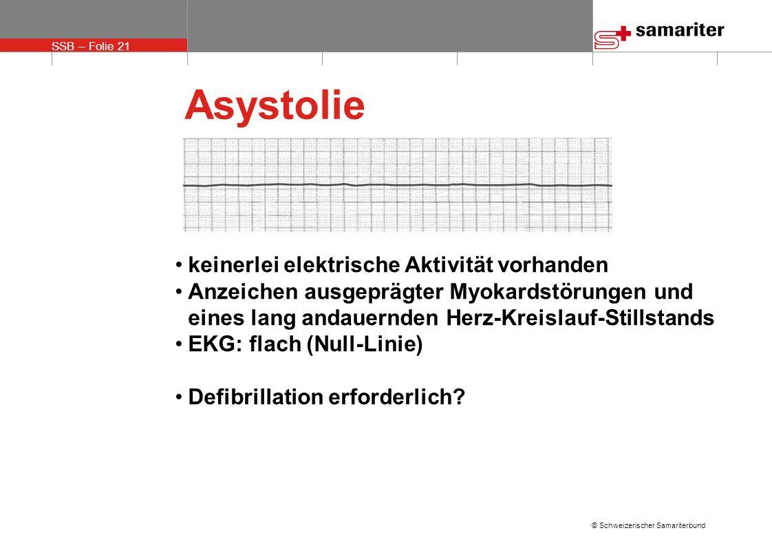 Asystolie keinerlei elektrische Aktivität vorhanden