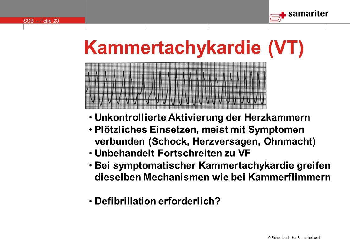 Kammertachykardie (VT)