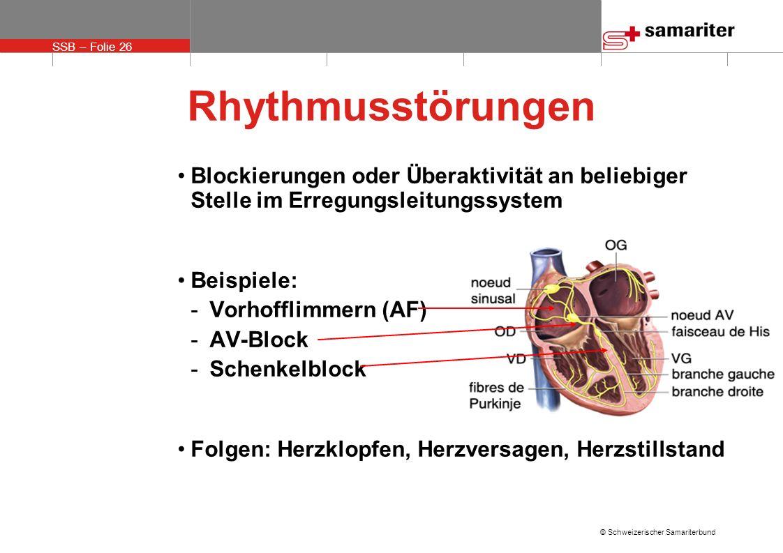 Rhythmusstörungen Blockierungen oder Überaktivität an beliebiger Stelle im Erregungsleitungssystem.