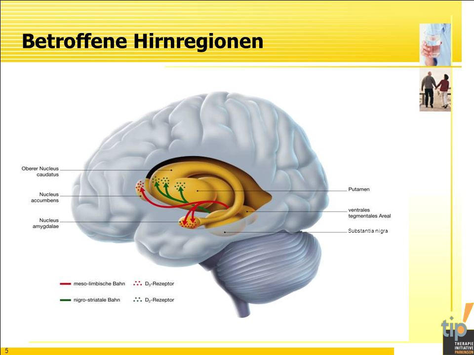 Betroffene Hirnregionen