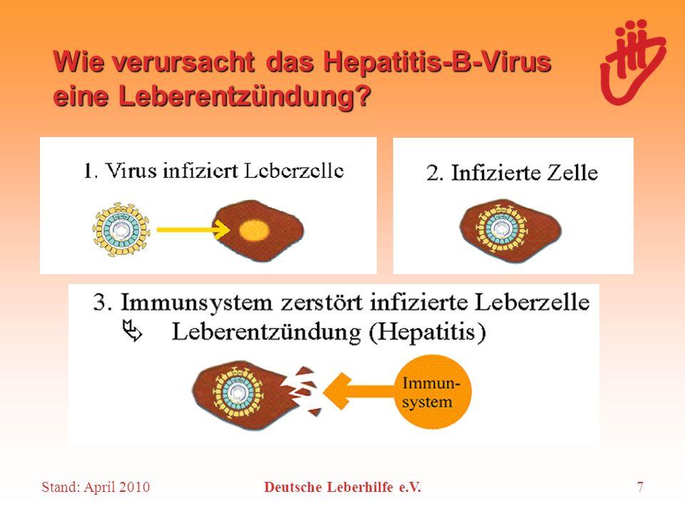 Wie verursacht das Hepatitis-B-Virus eine Leberentzündung