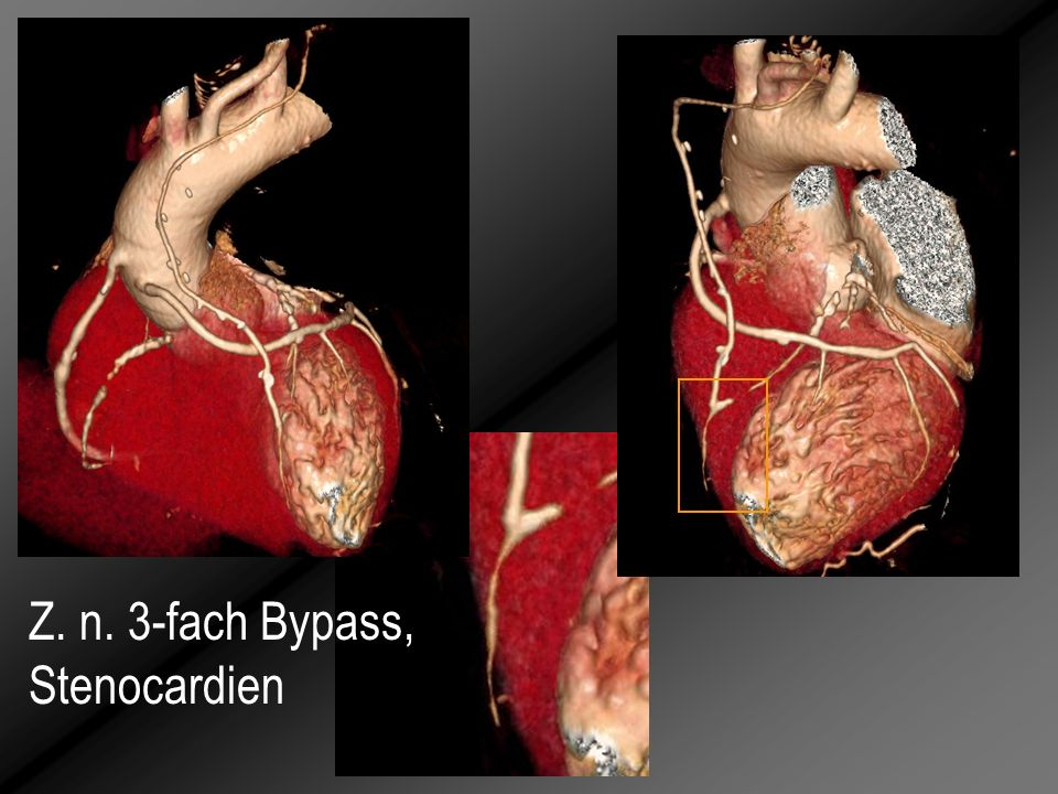 Z. n. 3-fach Bypass, Stenocardien