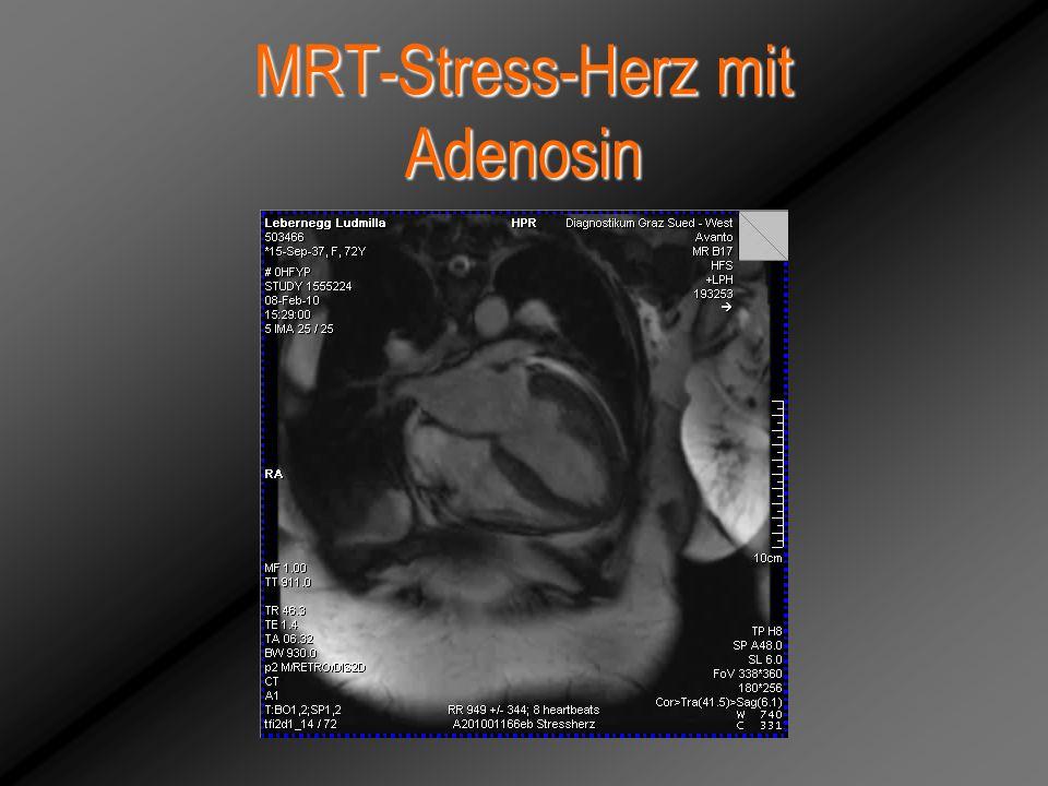 MRT-Stress-Herz mit Adenosin